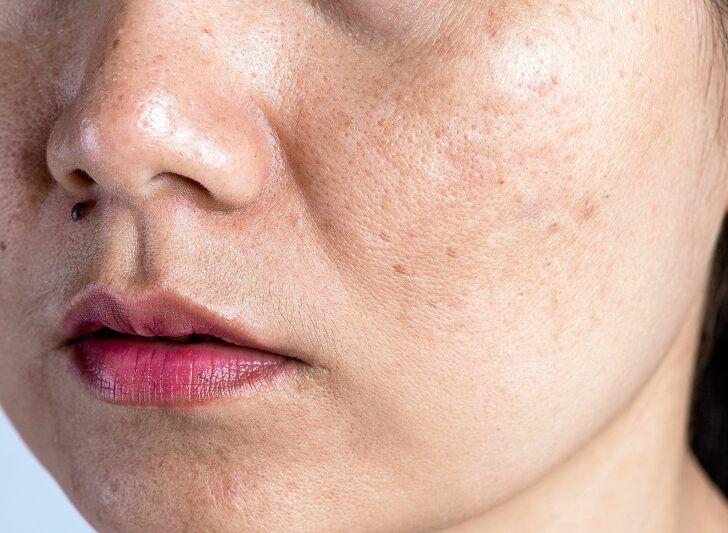Macchie e discromie della pelle: rimedi e beauty routine