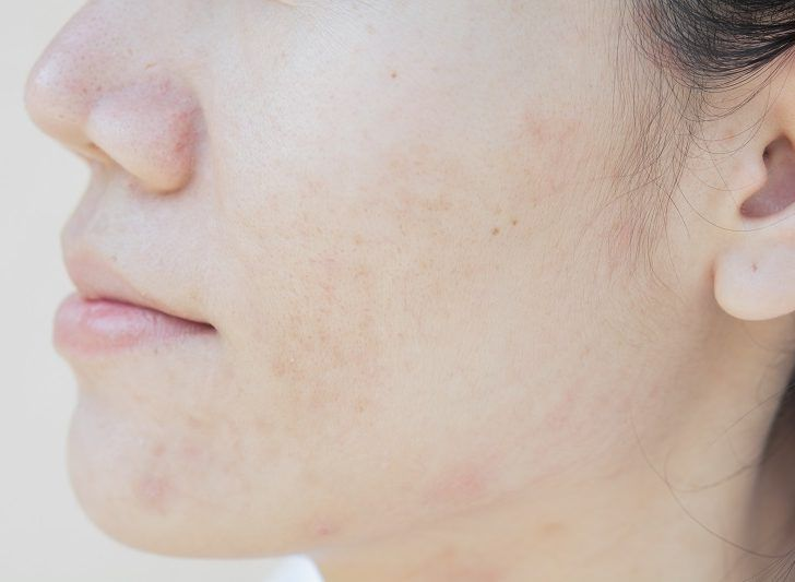 Crema per cicatrici e pelli segnate dall'Acne: FBA Top line Booster